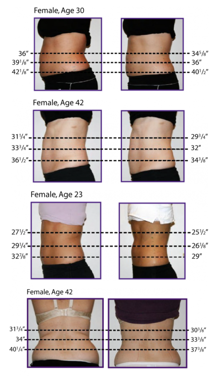 Results of fat reduction from lipo laser treatment