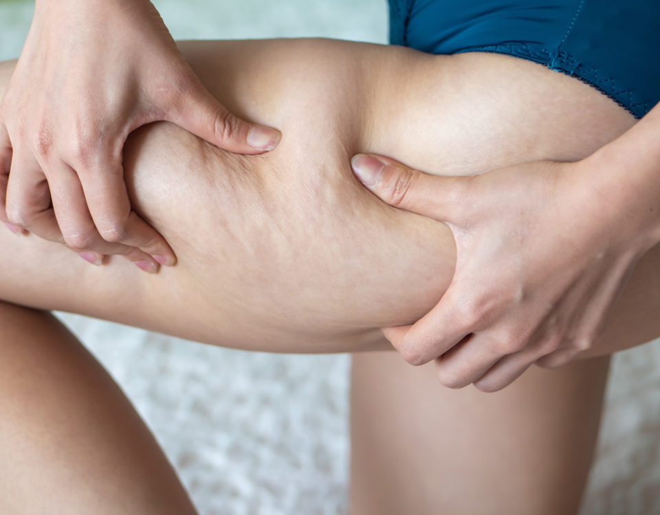 Why the body has Cellulite build up