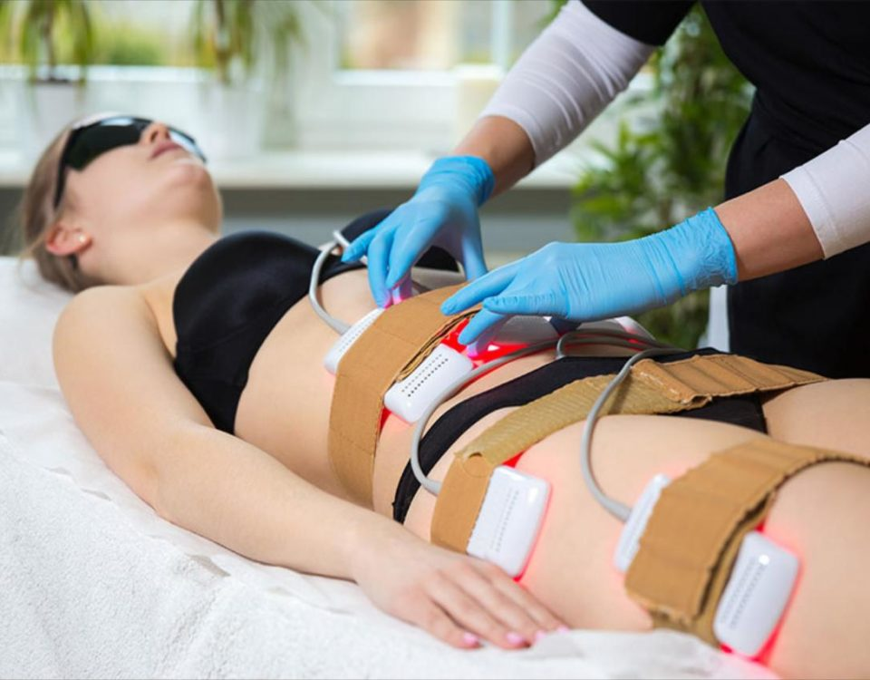 4 types of people who benefit from Lipo Laser